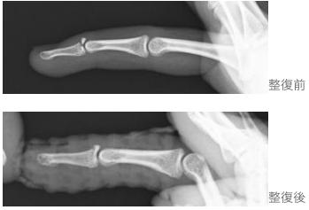 指の骨折の治療